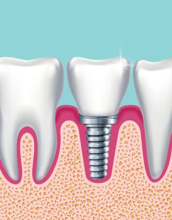 computer rendering side view of Dental Implant