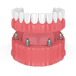 Removable full implant overdenture isolated over white background