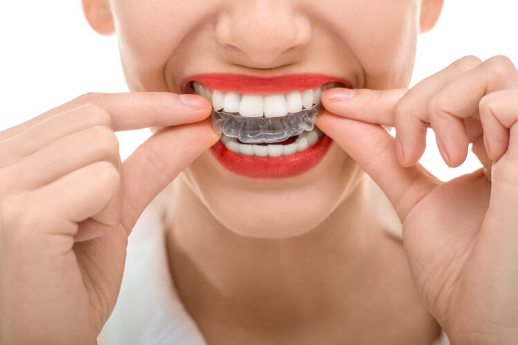 closeup of a woman with red lipstick taking out her clear aligners from Queensboro Plaza Dental Care